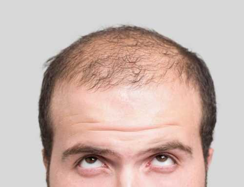Cheap Hair Transplant? You should read it to the end