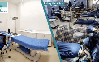 turkey hair transplant