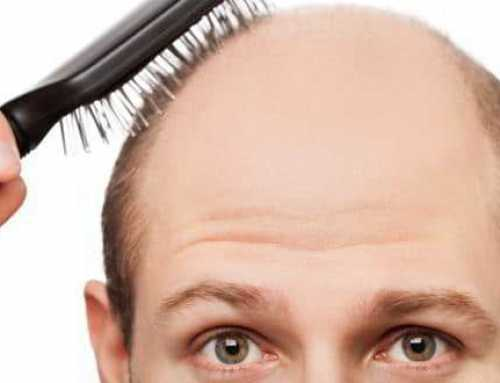 Losing Your Hair? Here's Why and What You Can Do About It