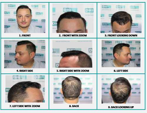 Things To Consider Before Going For A Hair Transplant