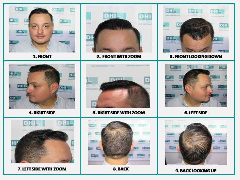 How many grafts are needed to cover the area that has been affected by alopecia