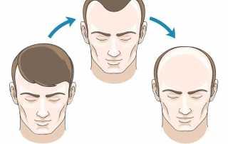 Receding Hairlines Vs. Maturing Hairlines