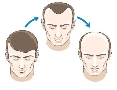 Receding Hairlines Vs. Maturing Hairlines