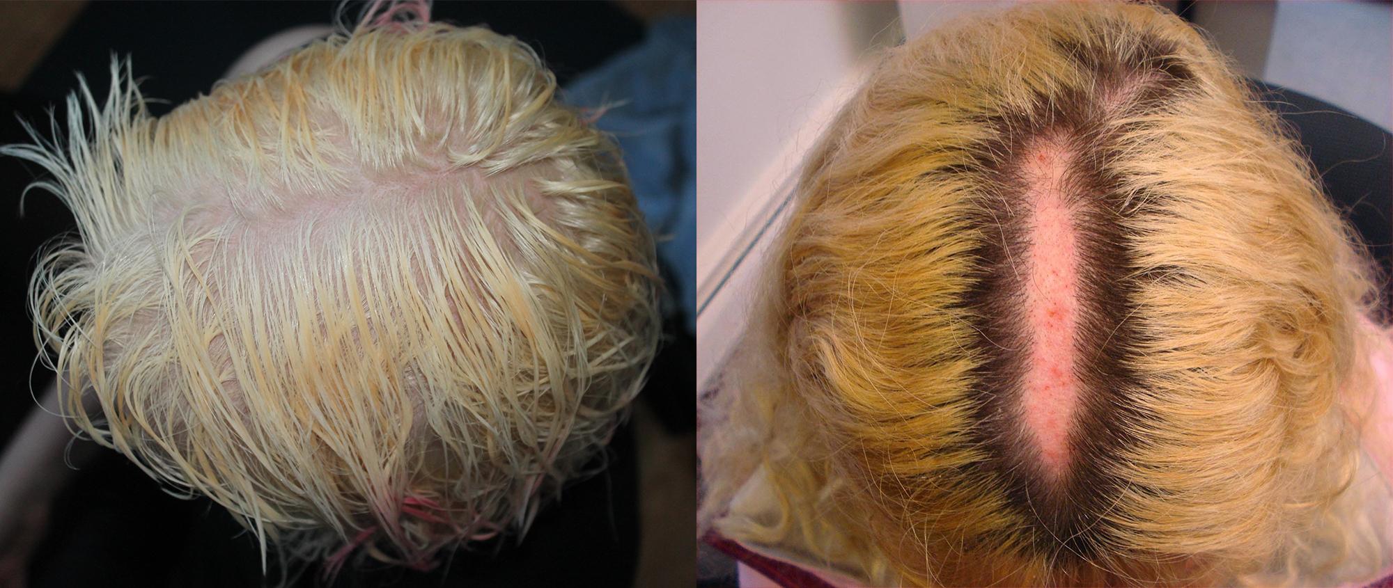 Hair dye nightmare