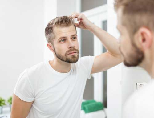 WHAT AGE IS TOO YOUNG FOR A HAIR TRANSPLANT?