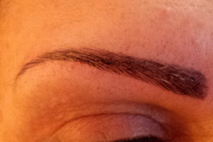 eyebrow-transplant-after-1