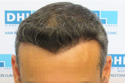 hair-transplant-before-10