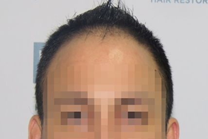 hair-transplant-before-11