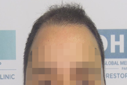 hair-transplant-before-12