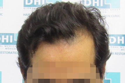 hair-transplant-before-13