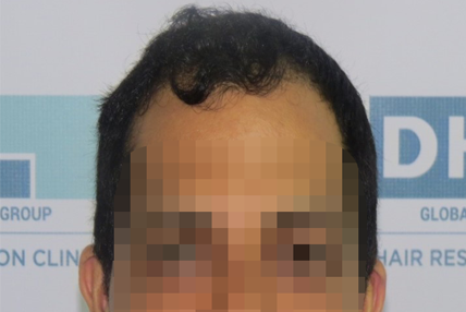 hair-transplant-before-14