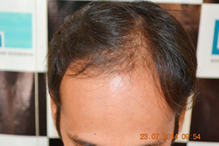 hair-transplant-before-3.1
