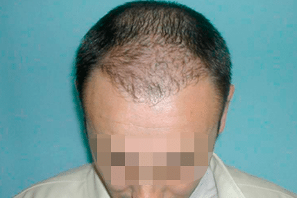 hair-transplant-before-4.1
