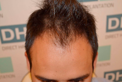 hair-transplant-before-5.1