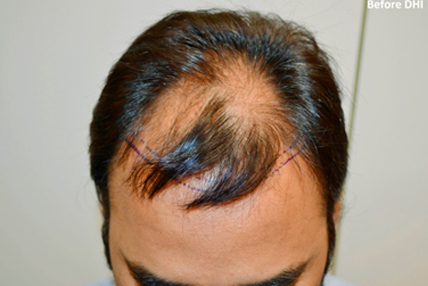 hair-transplant-before-6.1