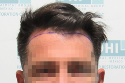hair-transplant-before-9