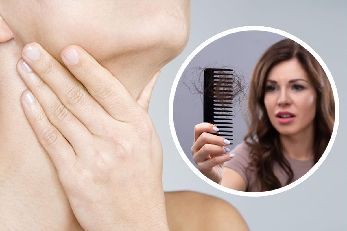 thyroid-disease-and-hair-loss