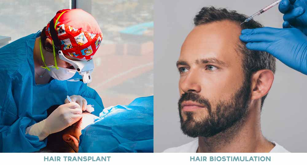 Trichotillomania-hair-pulling-disorder-hair-transplant-hair-biostimulation-therapy-tijuana