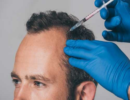 Mesotherapy for hair loss & hair growth