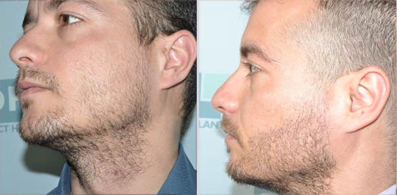 beard implantation