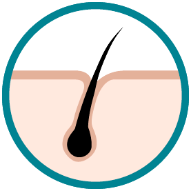 hair restoration tijuana