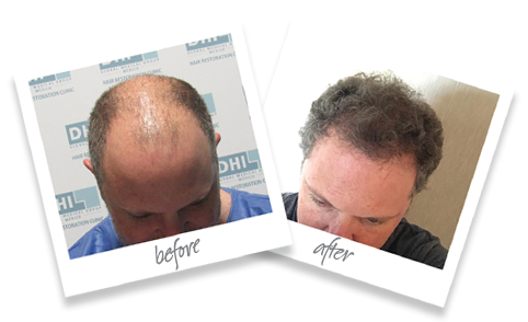 hair transplant in mexico