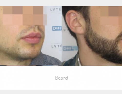 Barba 1