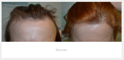 implante de cabello para mujeres