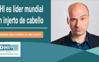 Injertos de Cabello