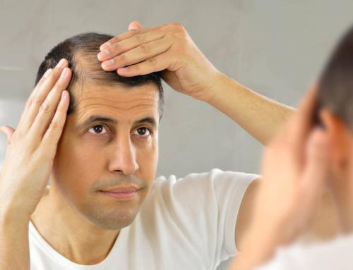 ¿Qué técnica debo de escoger para mi implante de cabello?  FUT vs FUE vs DHI