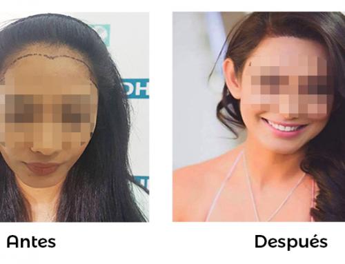 Alopecia en mujeres, ¿Cuáles son sus causas?
