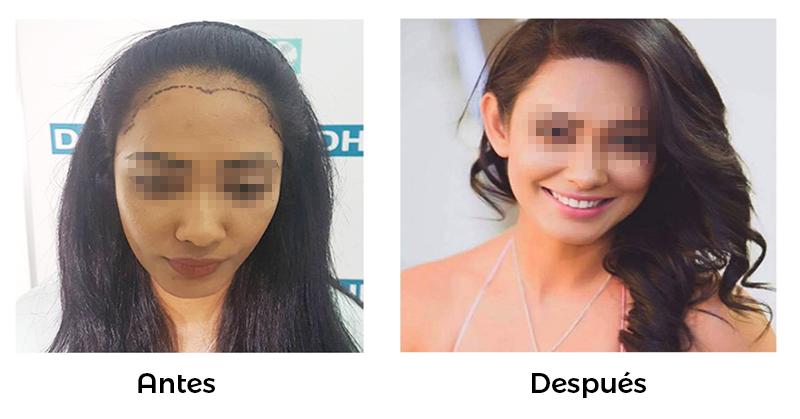 Alopecia mujeres causas