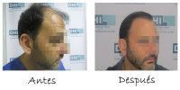 FUT vs FUE vs DHI