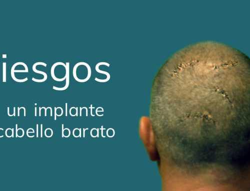 """Riesgos de un implante de cabello """"barato"""""""