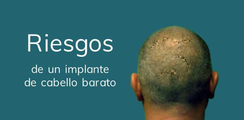 riesgos implante cabello barato