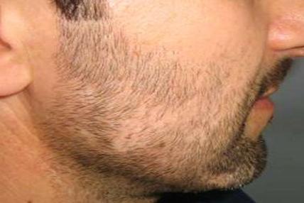 Antes de Injerto de Barba