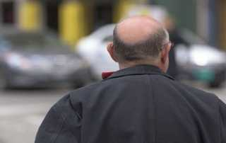 relación entre alopecia androgenica y covid