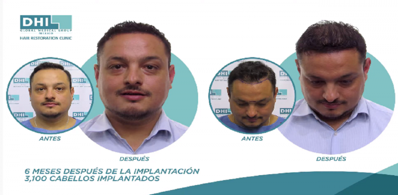 Erick Espinosa, uno más de nuestros clientes satisfechos