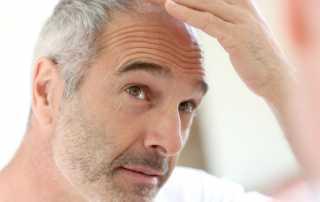Edad para un implante capilar