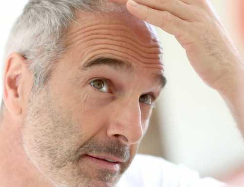 ¿Hay límite de edad para un implante capilar?