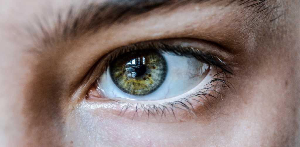 Implante capilar en cejas